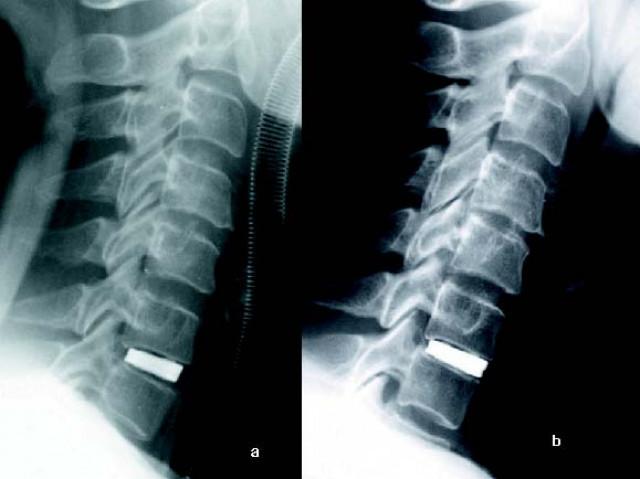 Los medios del dolor en la espalda
