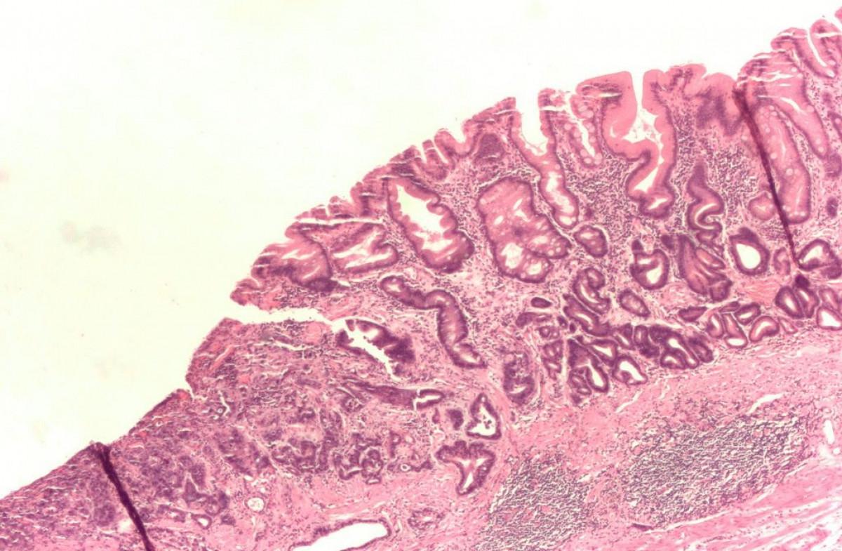 Adenocarcinoma gu00e1strico