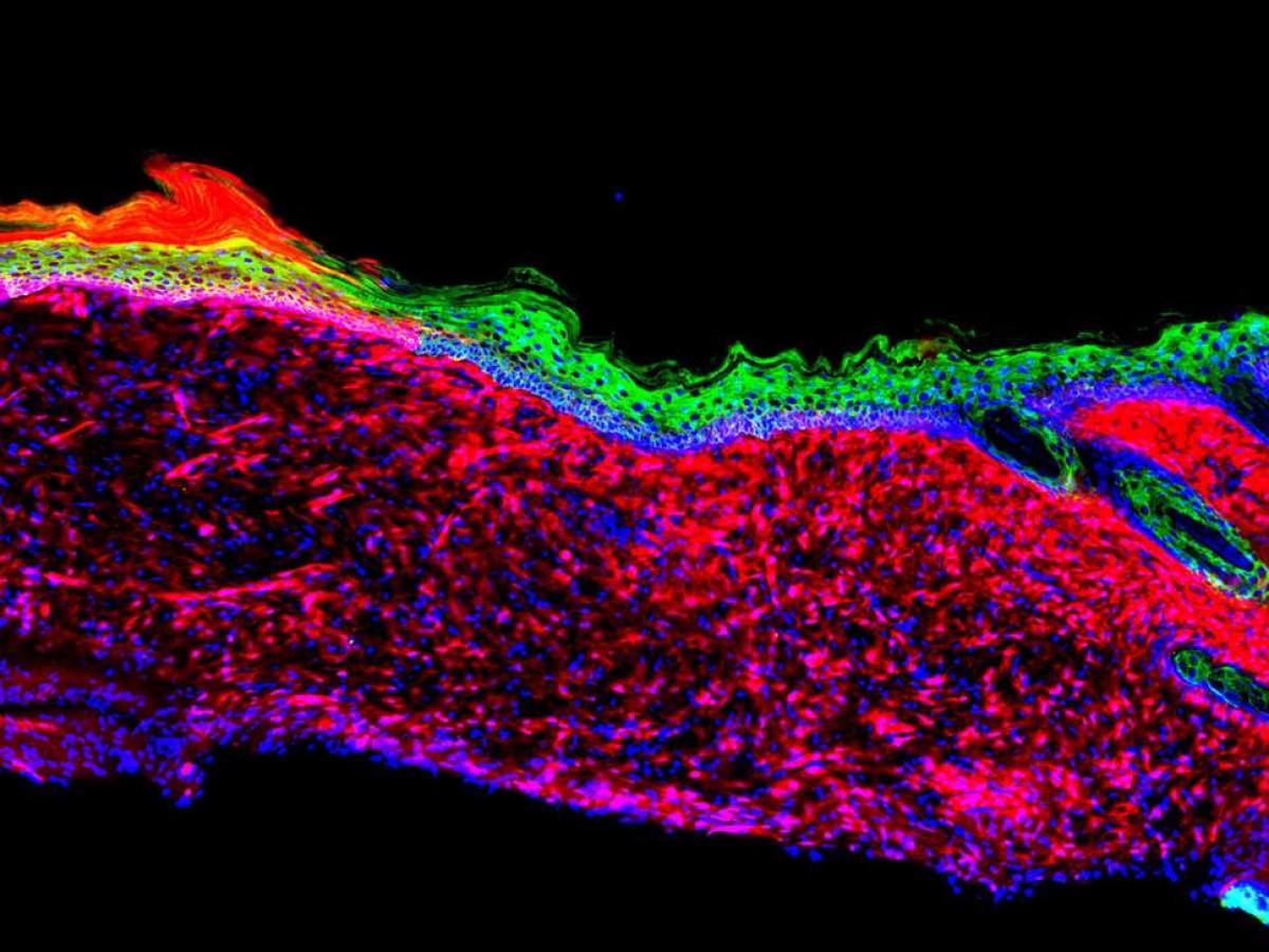 Los tejidos epiteliales se generaron mediante la conversiu00f3n de un tipo de cu00e9lula en otro dentro de una u00falcera grande en un modelo de ratu00f3n de laboratorio Salk Institute